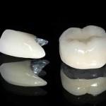 Có nên lựa chọn răng sứ titan không?