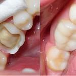 Độ bền của răng sứ cercon duy trì được bao lâu?