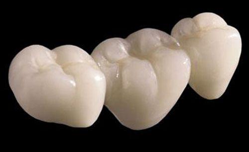 Độ bền của răng sứ thẩm mỹ