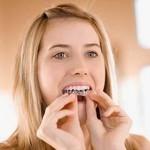 Hướng dẫn cách tẩy trắng răng tại nhà