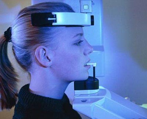 Kỹ thuật nâng xoang thông dụng trong Implant