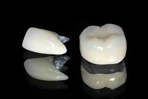 Làm răng hàm bằng răng sứ kim loại có tốt không?