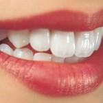 Làm răng sứ ở đâu tốt và uy tín nhất?
