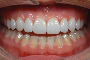 Làm sao để răng hết hô và khấp khểnh không đều?