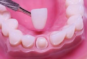 Mài răng có đau không?