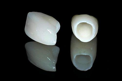 Nên lựa chọn loại răng sứ nào?