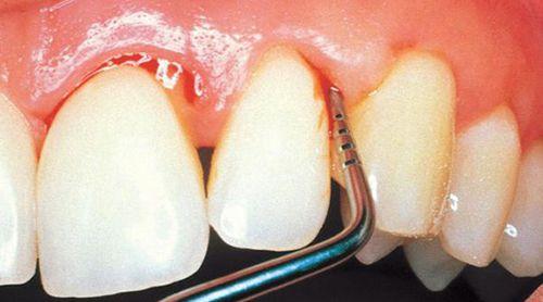 Nha chu viêm và Implant