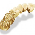 Những đặc điểm của răng sứ kim loại