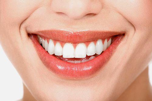 Những đặc điểm của răng sứ toàn sứ