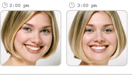 Những điều cần lưu ý khi tẩy trắng răng