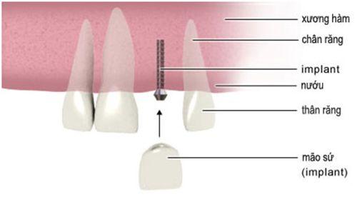 Những trường hợp phải dùng thêm Mini Implant