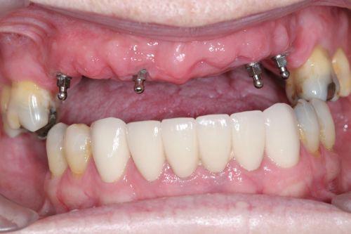 Quy trình cấy ghép Mini Implant