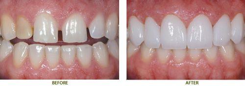 Răng sứ Cercon có màu giống răng thật?