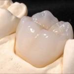 Răng sứ Cercon giá bao nhiêu tiền?