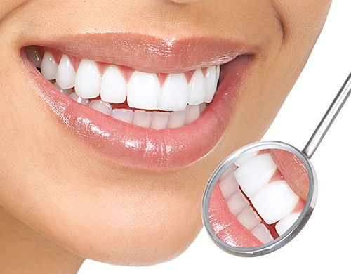 Răng sứ Cercon HT thẩm mỹ