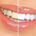 Răng sứ có tẩy trắng được không?