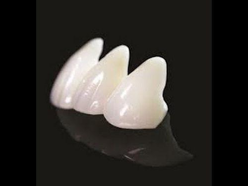 Răng sứ E.max có tốt không?