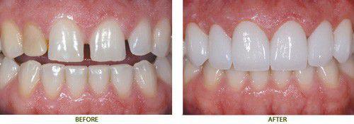 Răng sứ không kim loại E.max