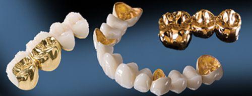 Răng sứ kim loại quý