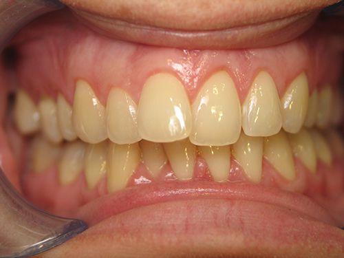 Răng sứ kim loại thường có độ bền bao lâu?