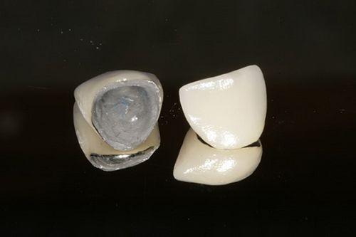 Bọc răng sứ là gì? Bọc răng sứ loại nào HOÀN HẢO nhất 2