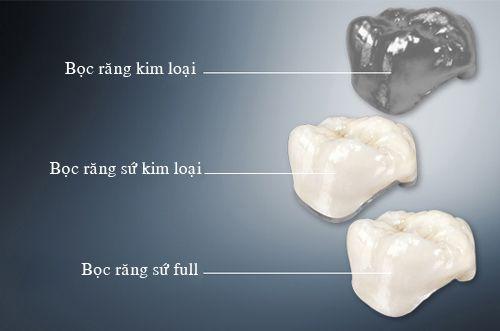 Răng sứ toàn sứ có đắt không?