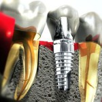 Sau khi cấy ghép răng Implant nên ăn những gì?