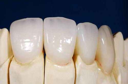 Tại sao răng toàn sứ lại có giá cao?