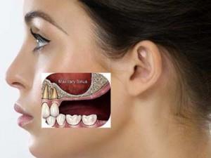 Tại sao xương hàm bị tiêu hủy sau mất răng?