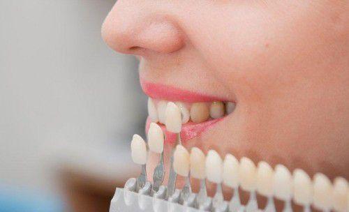 Tẩy trắng răng bằng công nghệ Bleach Bright