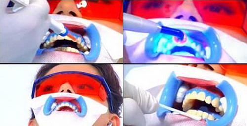 Tẩy trắng răng bằng LaserWhitening