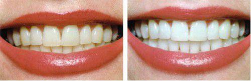 Tẩy trắng răng có hại gì không?