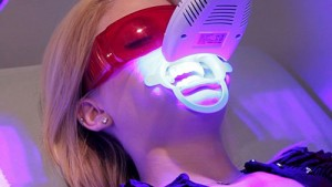 Tẩy trắng răng duy trì được bao lâu?