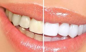 Thời gian tẩy trắng răng mất bao lâu?