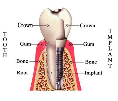 Trồng răng Implant có gây hại cho cơ thể không?