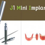 Ưu điểm của Mini Implant