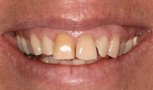 Những ưu điểm nổi bật của răng sứ thẩm mỹ