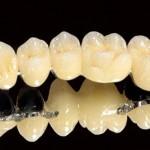 Ưu điểm vượt trội của cầu răng sứ Titan là gì?