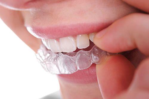Ưu nhược điểm của máng tẩy trắng răng