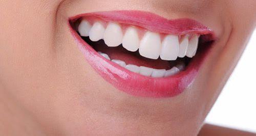 Các loại vật liệu trám răng tốt nhất hiện nay