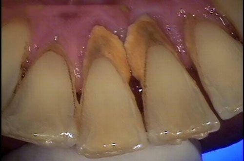 Ngăn ngừa cao răng như thế nào?