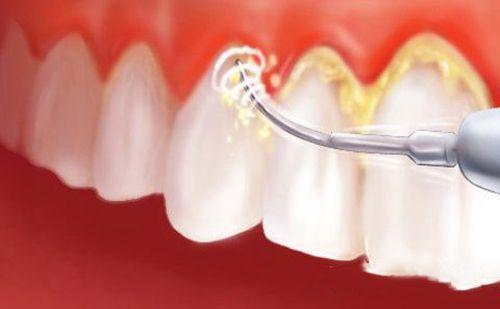Cạo vôi răng có đau không và có GÂY HẠI gì cho răng miệng hay không??