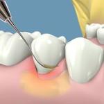 Cạo vôi răng có đau không?