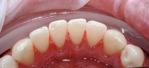 Cạo vôi răng có gây đau nhức răng miệng không?
