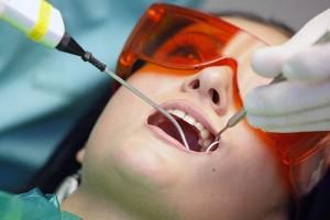 Cạo vôi răng có tác dụng gì?
