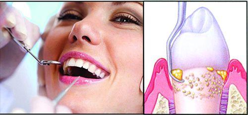 Cạo vôi răng có tốt không?
