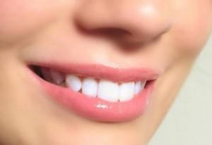 Cạo vôi răng giá bao nhiêu tiền?