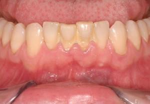 Cạo vôi răng là gì?