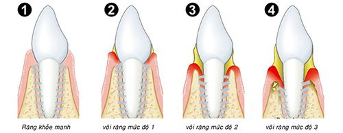 Cạo vôi răng ở đâu tốt nhất?
