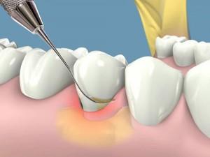Cạo vôi răng và đánh bóng răng